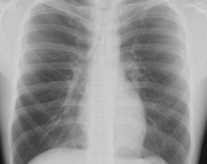 Treating Pleural Thickening Pleural Thickening